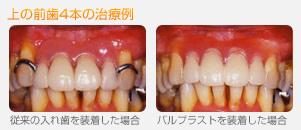 バルプラストと、通常の部分入れ歯